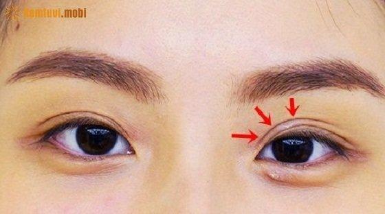 Hiện tượng nháy mắt trái có điềm gì