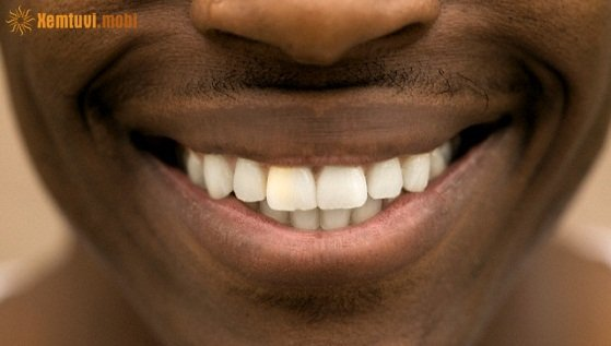Đàn ông môi thâm là người như thế nào