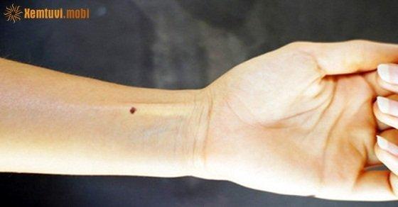 Xem tướng nốt ruồi ở cổ tay, nốt ruồi trên vòng cổ tay